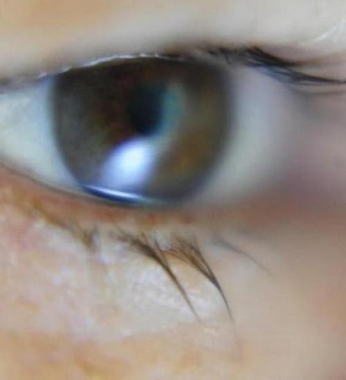 Homem que ficou cego por demora em cirurgia em SC será indenizado em R$ 150 mil.